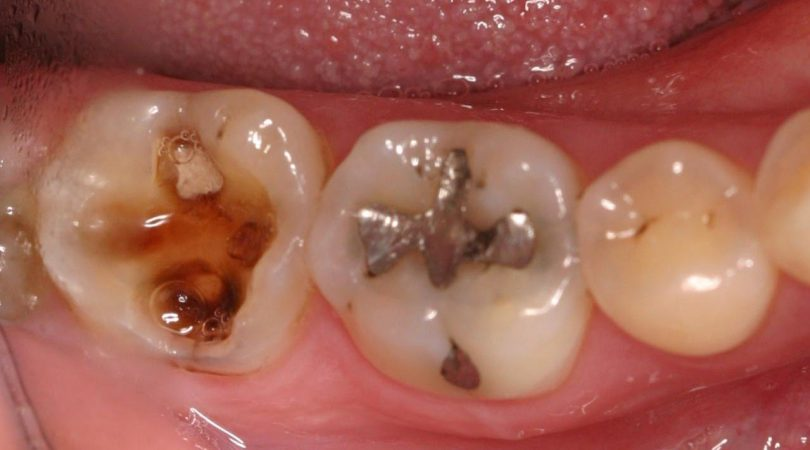 Teeth are yellowish and having cavity.