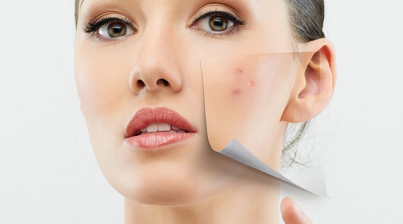 how to avoid pimples and oily face