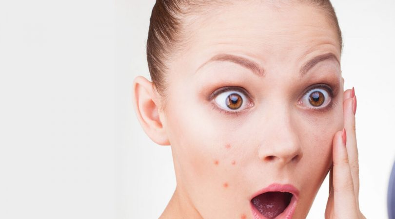 Having pimples during polycysts