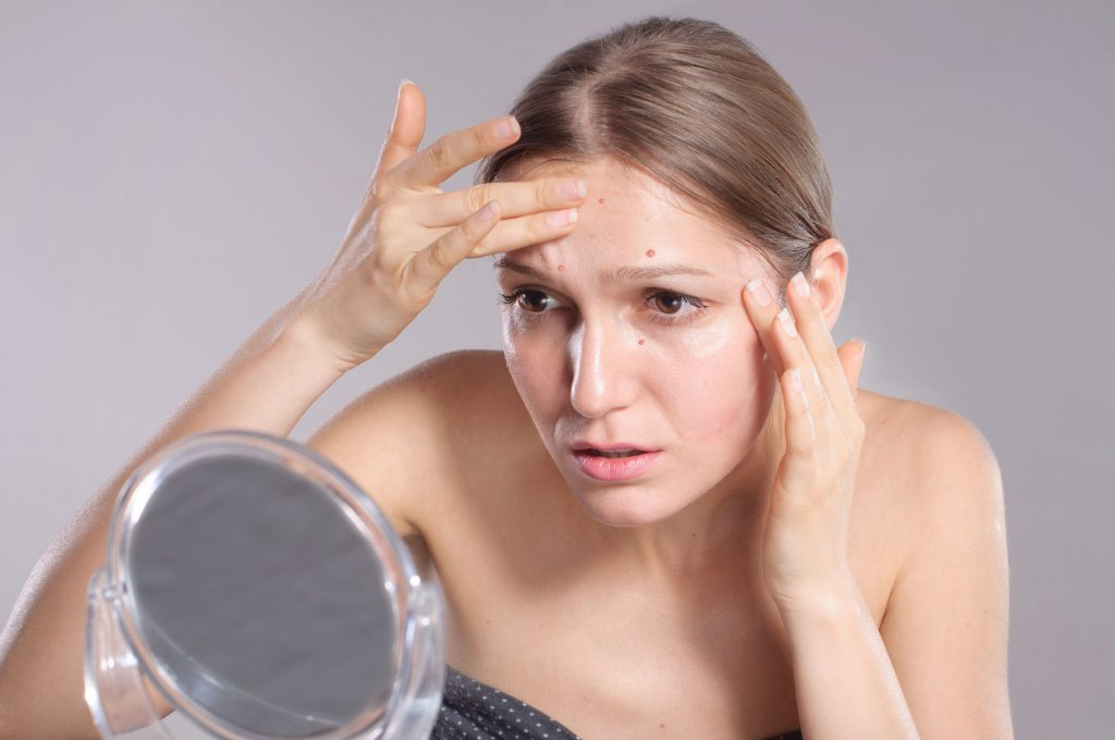 57953359 - young woman squeeze her acne in front of the mirror. woman skin care concept