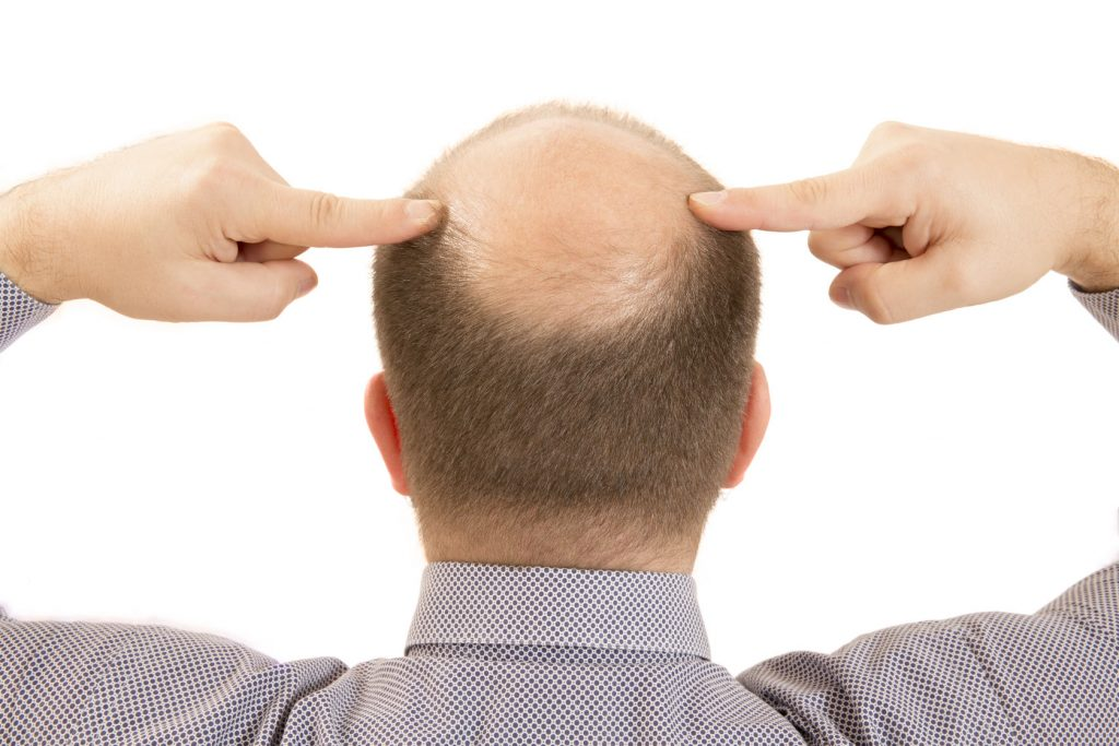 59838052 - man alopecia baldness or hair loss - close up head two hands isolated