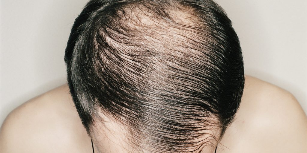 Man with hair combed over bald patch, overhead view