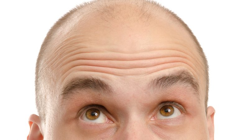 Is minoxidil cures androgenic alopecia?