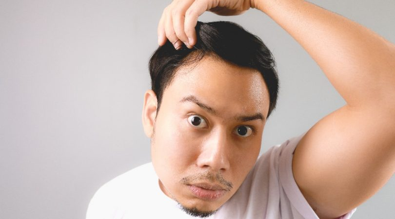 Having low hair density and dandruff patches