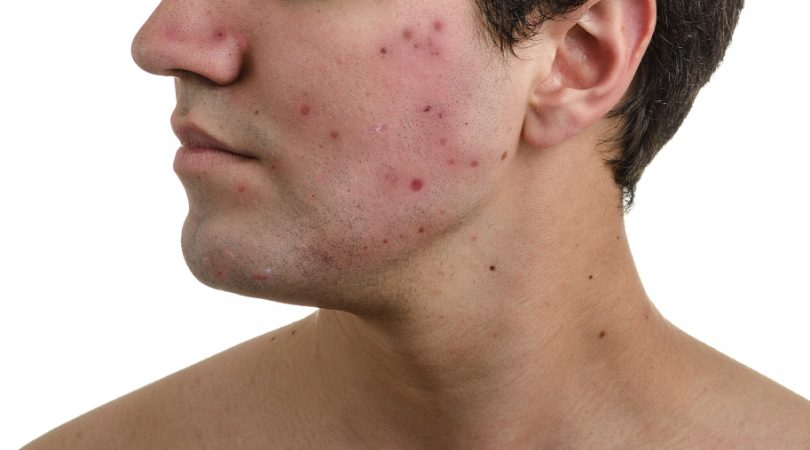Having acne and pimples