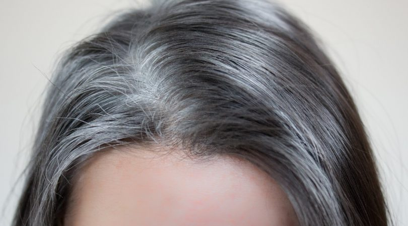 White and dry hairs problem.