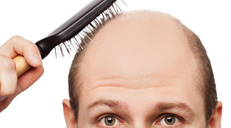 Hairfall and hair thickness problem