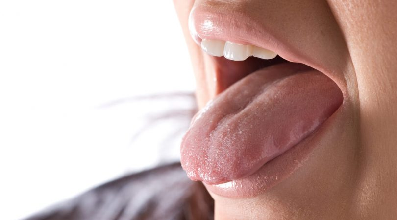 Having fissured tongue
